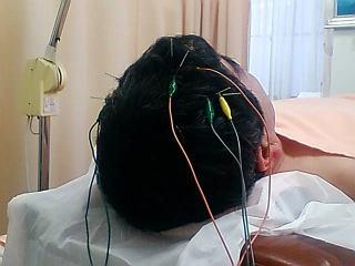 パーキンソン病の鍼治療